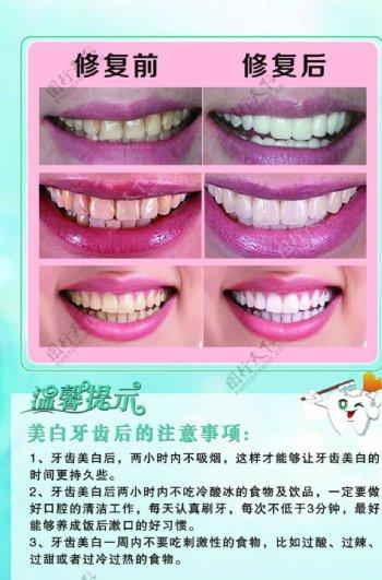 牙科展板海报图片